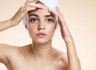 problemi di acne