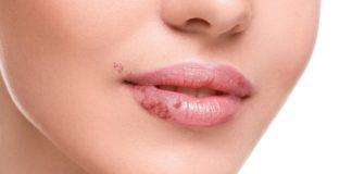 Come eliminare un Herpes labiale