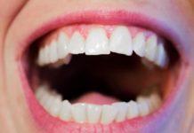 parodontite o piorrea