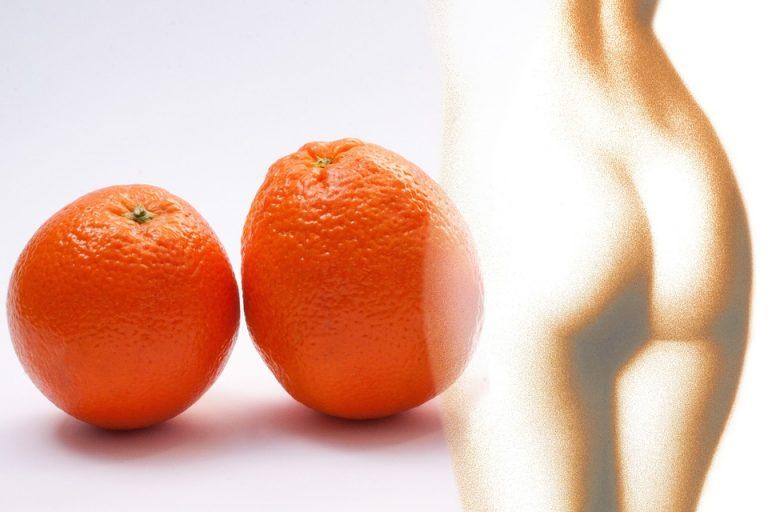 Come eliminare la cellulite in poco tempo?
