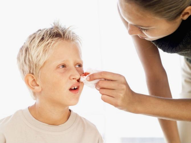 Sangue dal naso bambini o epistassi, quando preoccuparsi?
