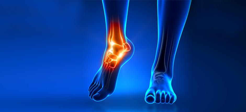 Dolore alla caviglia: le cause più comuni e i rimedi