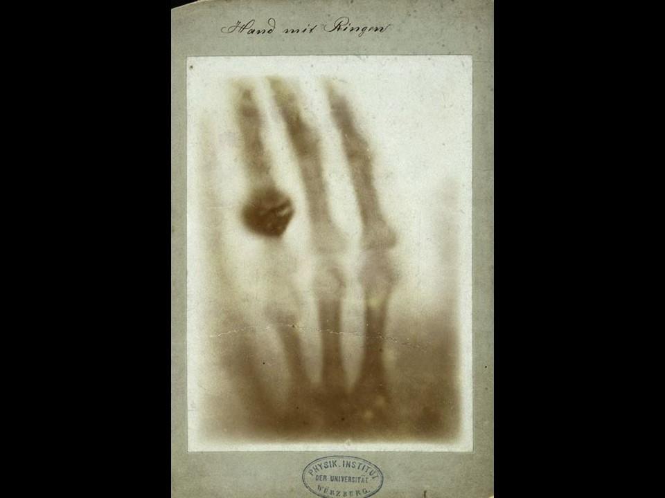 Prima radiografia della storia