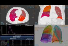Segmentazione polmonare con mappe colorimetriche e valutazione dei volumi polmonari delle aree normalmente aereate e di quelle colpite dalla polmonite nelle varie fasi.